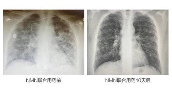 MISSPEP蜜思派为你揭秘:NMN如何治愈新冠重症